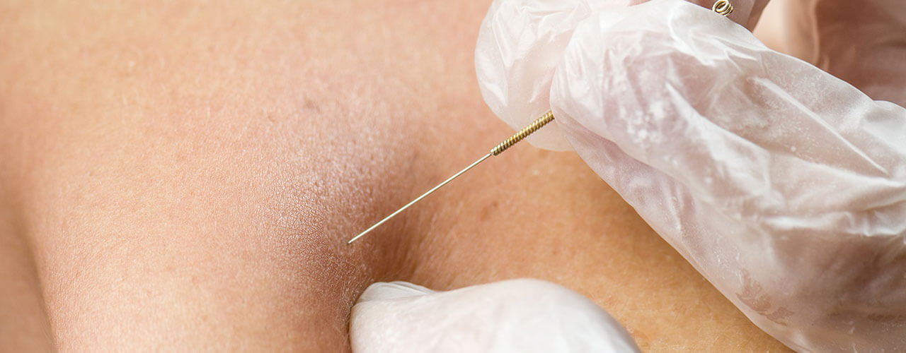 dry-needling-bay-state-physical-therapy
